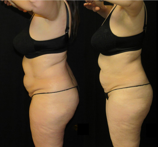 Be slim_Before and after4.jpg