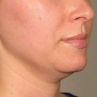 Ultherapy-0132P-H_0Day_BEFORE_LOWER_hi-r
