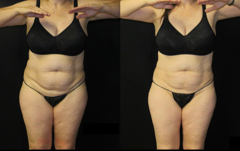 Be slim_Before and after3.jpg