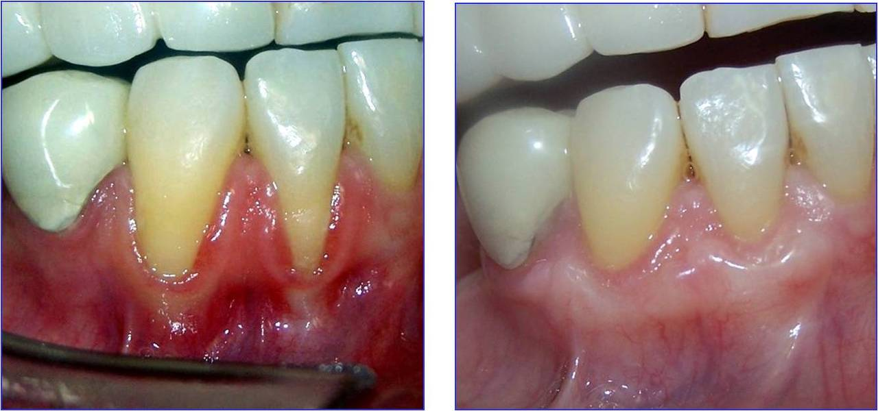 Gingival grafts