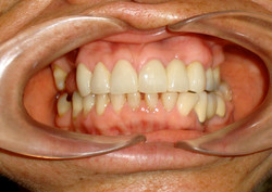 Gingival Contour-Gingival Graft