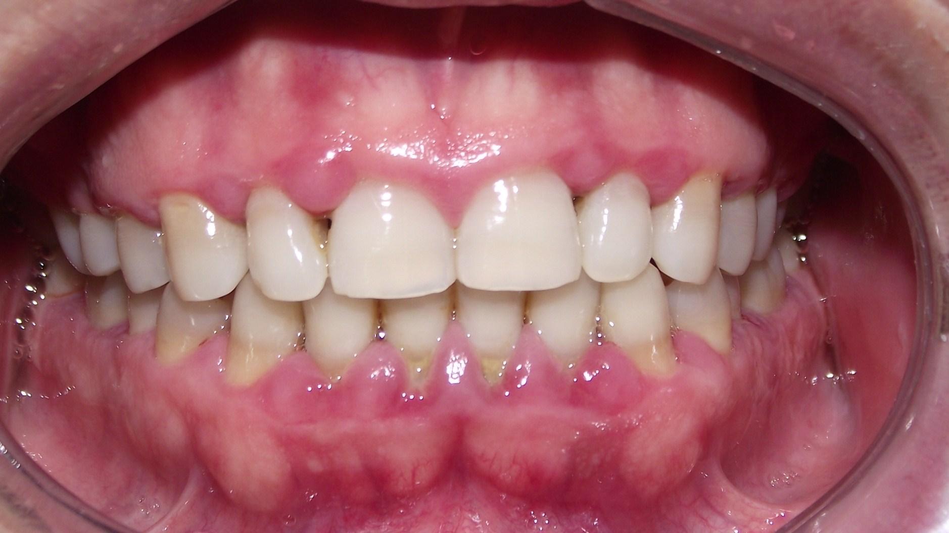 Periodontitis moderada