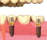 Clínica de implantes dentales en Monterrey