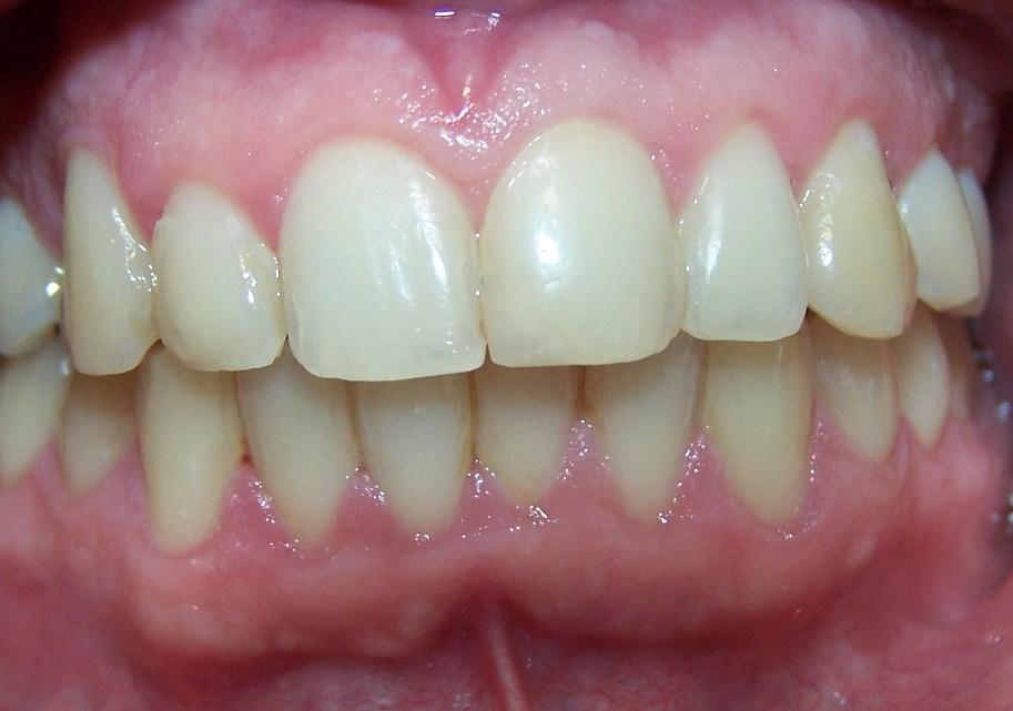 Periodontitis leve