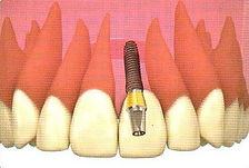 Implantes dentales Monterrey