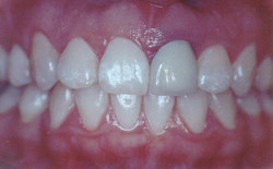 GIngival contour