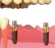 Dentista Implantólogo en Monterrey
