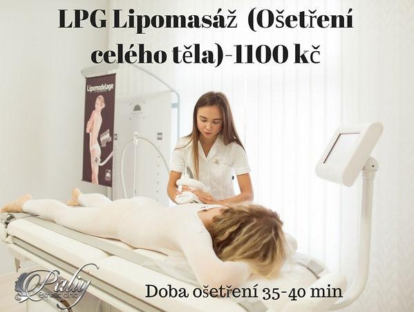 Липомассаж LPG (тело)-1100 kč (1).jpg