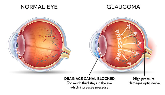Glaucoma 400.jpg
