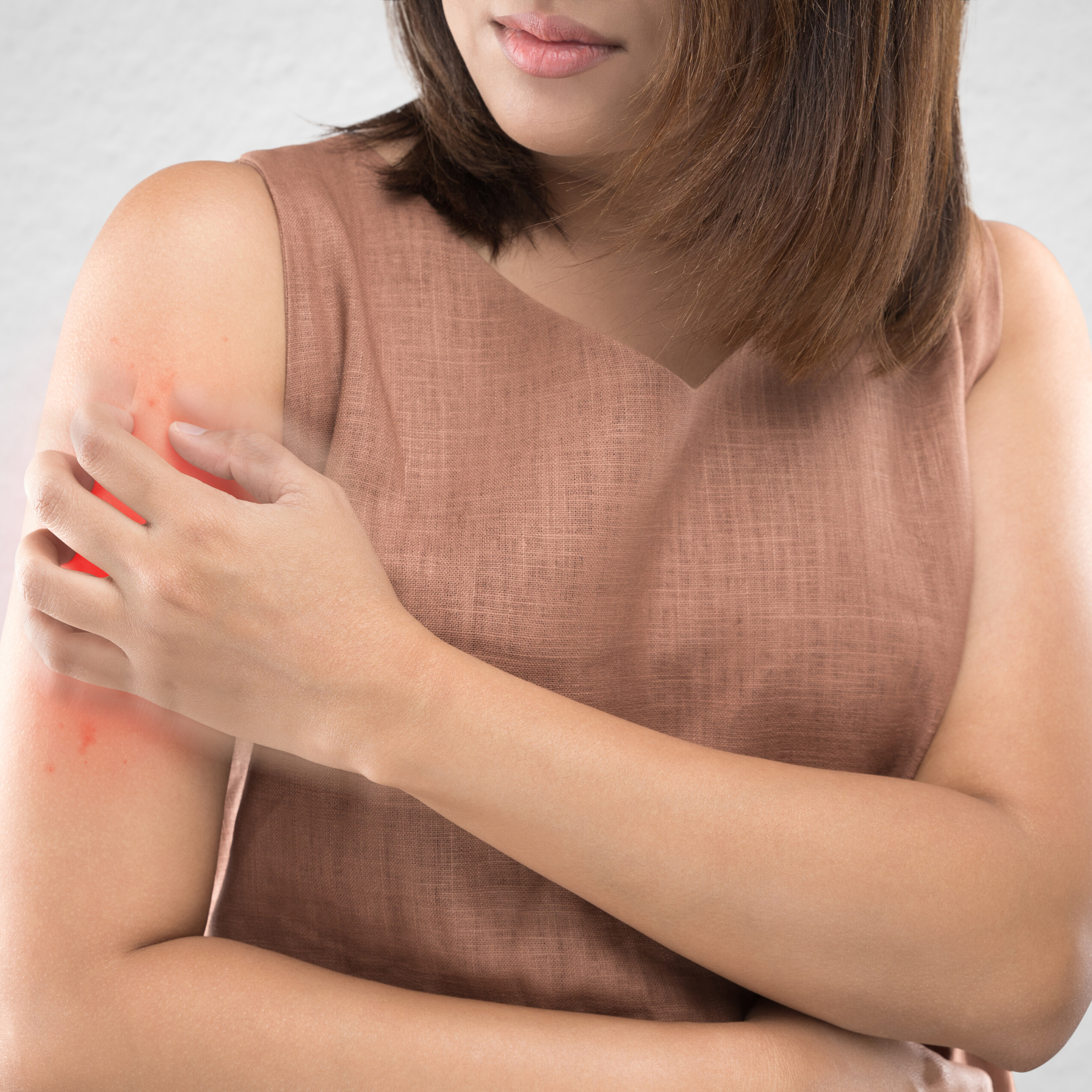 Conheça a dermatite herpetiforme