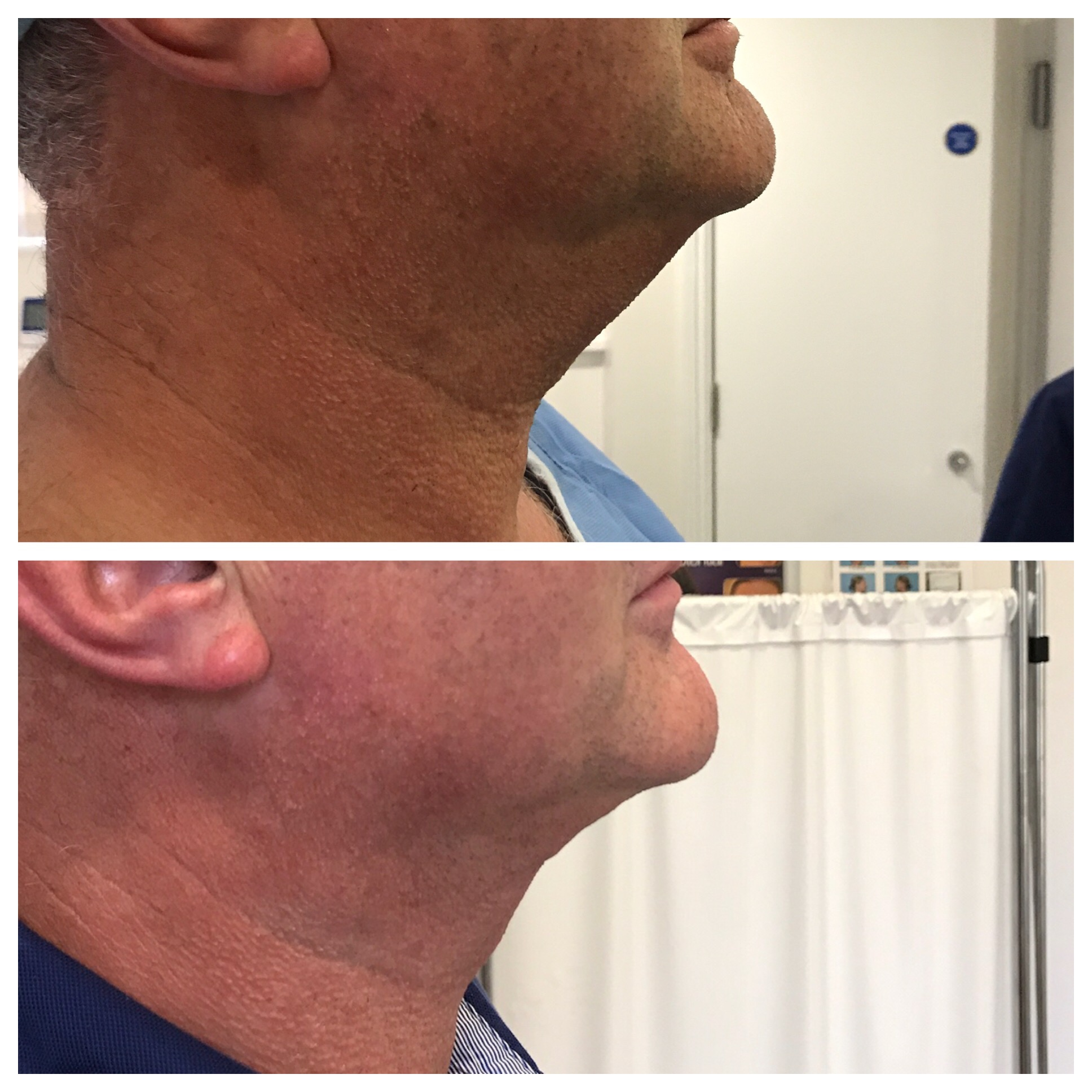 chin and neck before and after