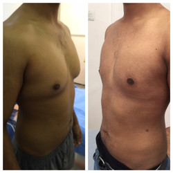 male chest before and after