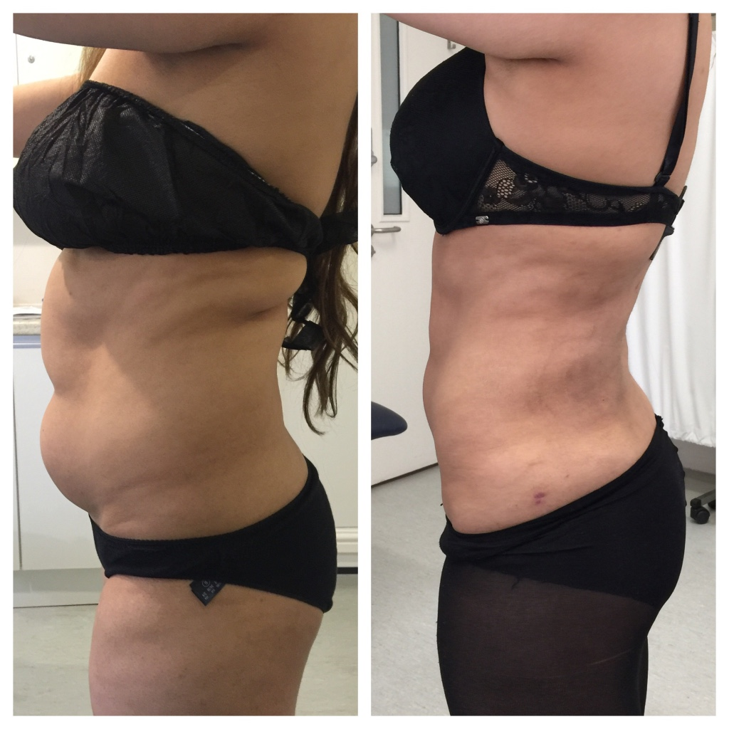 Vaser liposculpting of tummy
