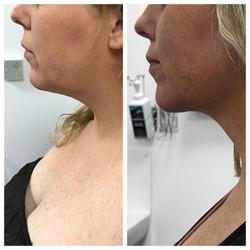 Beautiful chin and neck