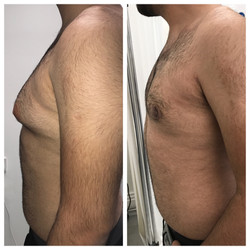 Man boobs before and after