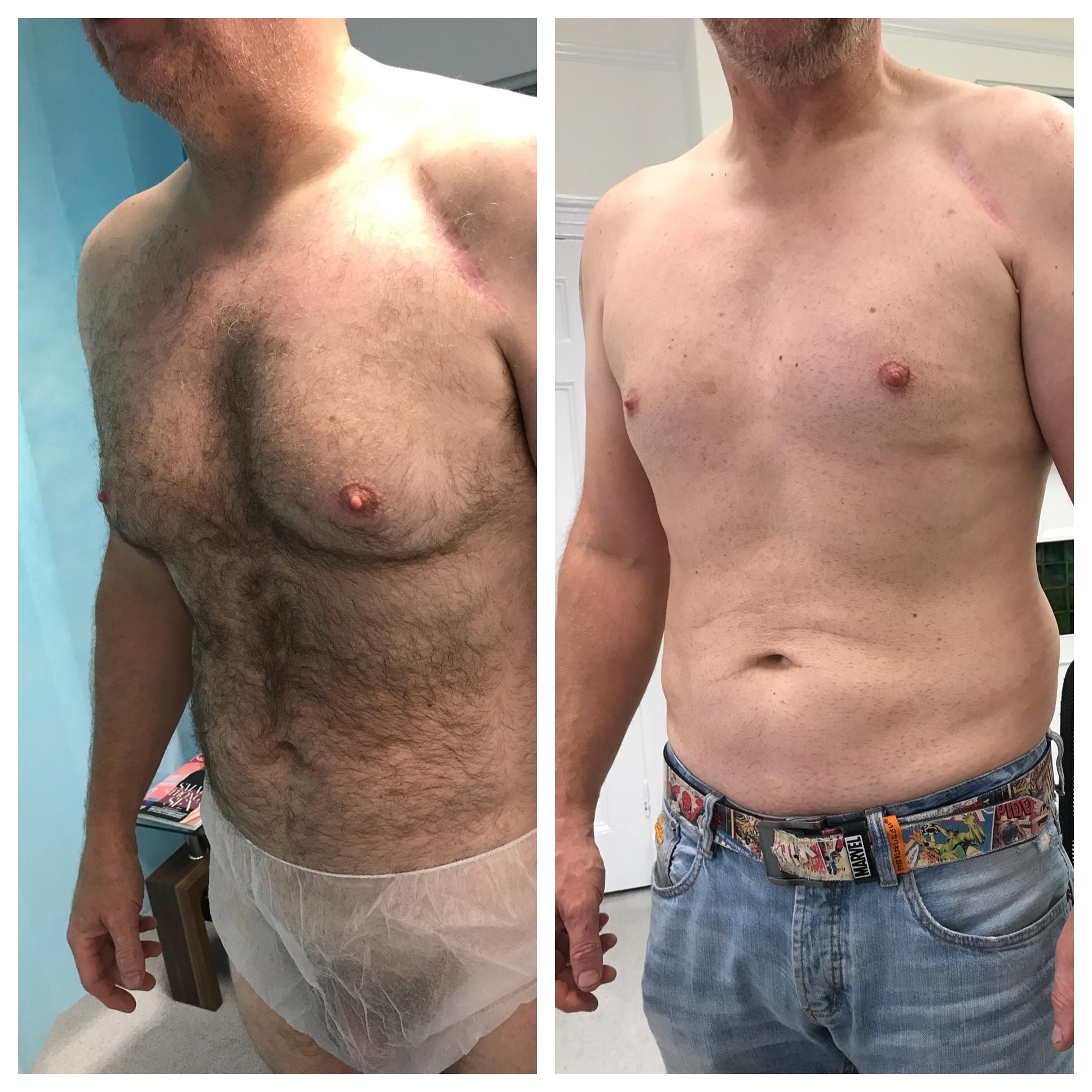 moobs post op few months