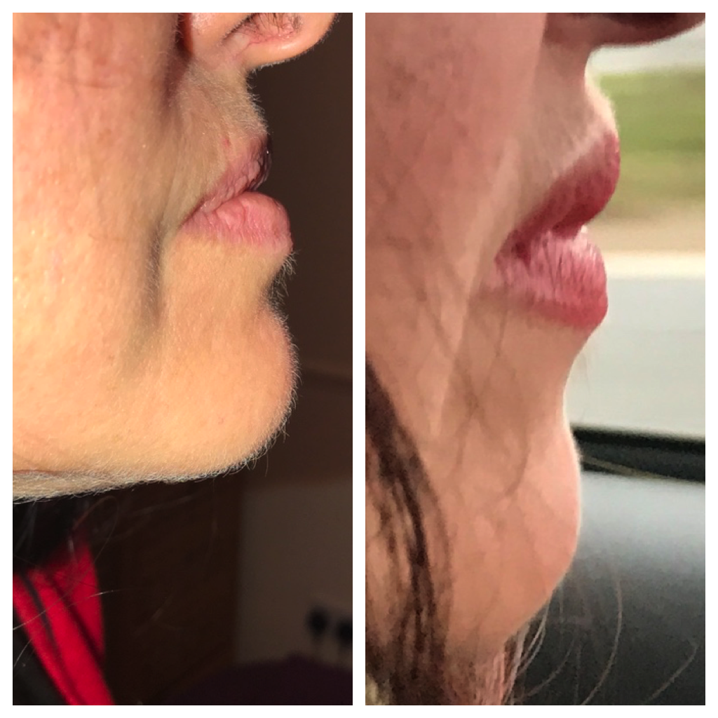 lips before and after dermal filler