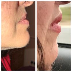 lips before and after dermal filler