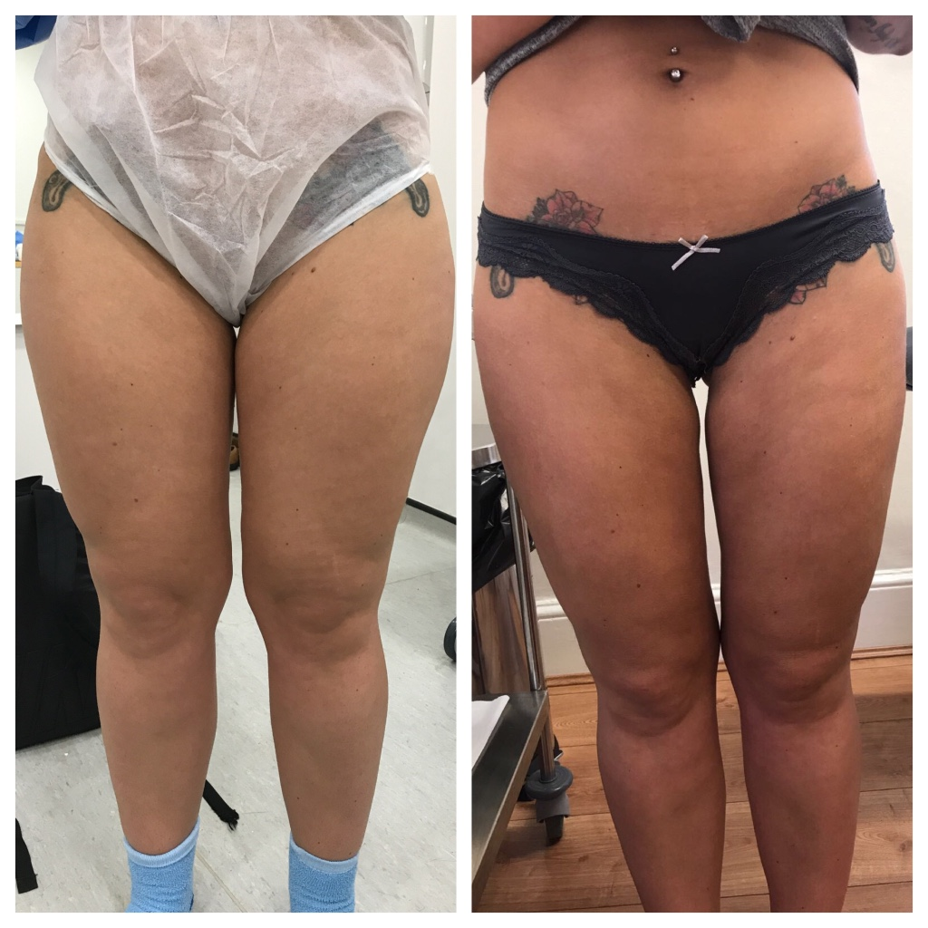 Inner thighs and knees, vaser liposuction