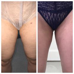 Inner thighs