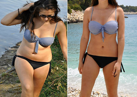 Real before and after weight loss photo of woman's body in bikini.jpg