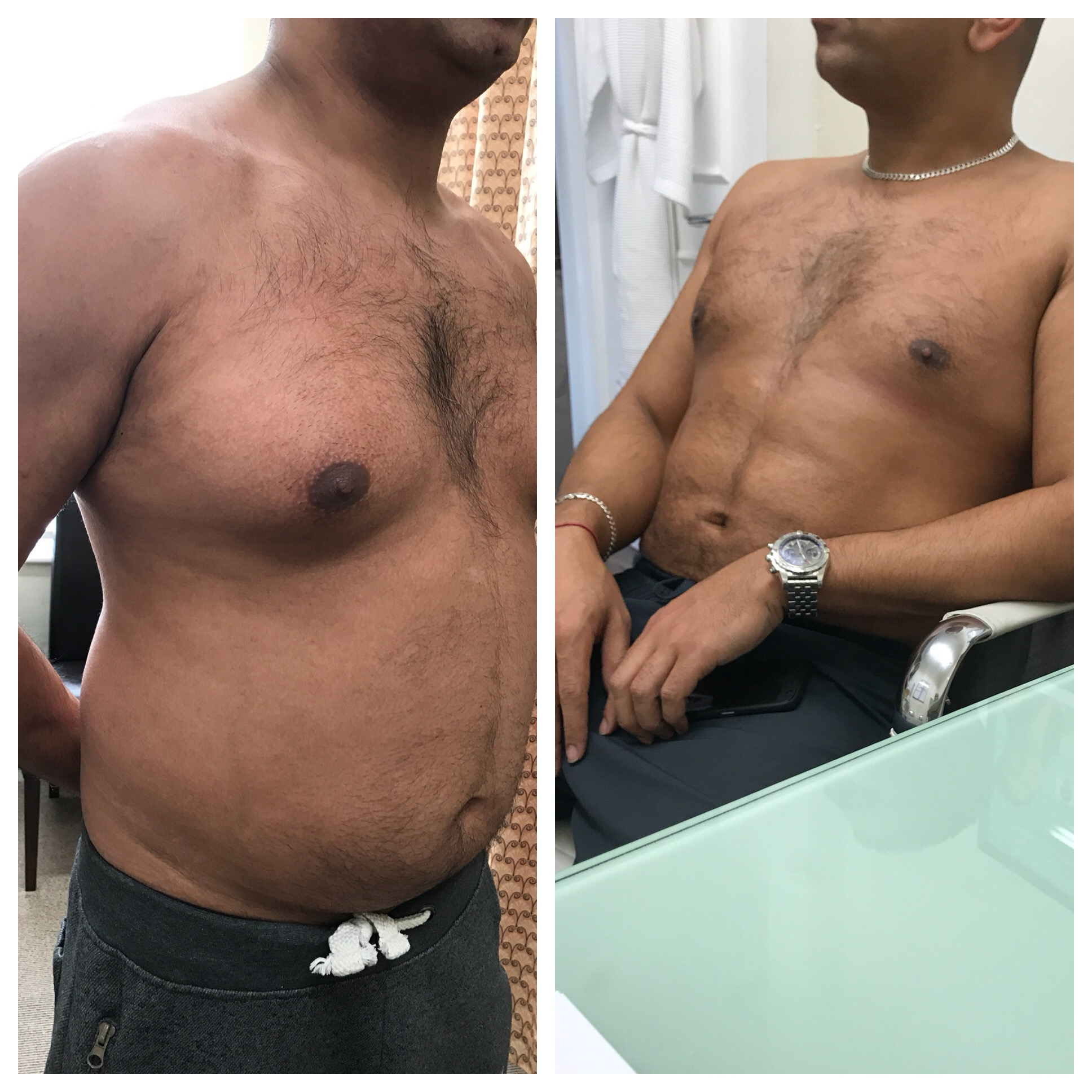 vaser chest and tummy, very confident
