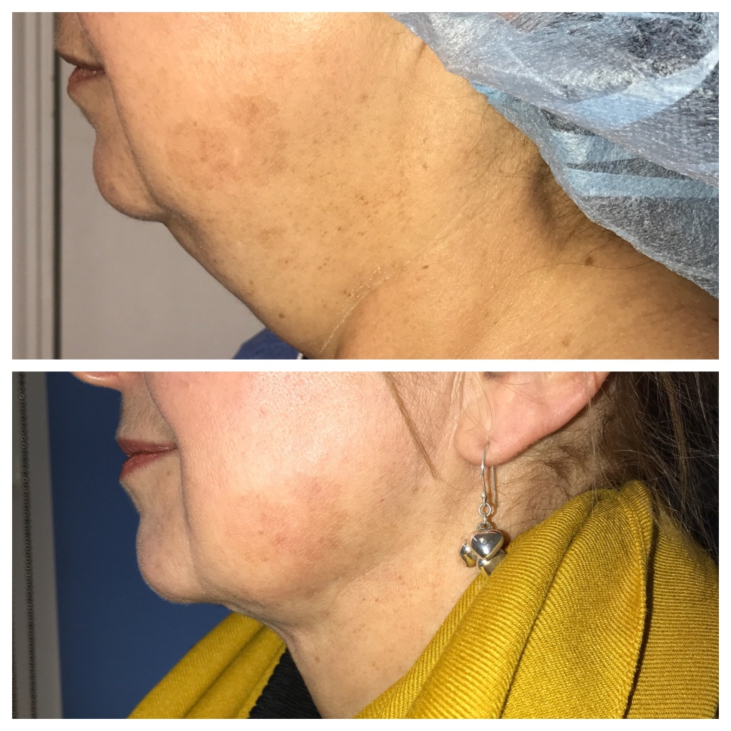 Chin liposculpting