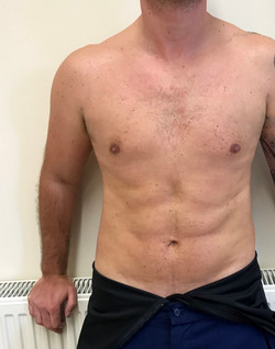 Vaser hidef 4d of the tummy and chest