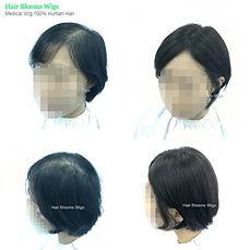 hair blooms wigs, medical wig, 醫療假髮, 髮片, 香港假髮