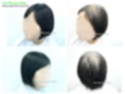 ooms Wigs, women's hairpiece for hair loss and hair thinning, Hong Kong Causeway Bay, 真髮, 醫療假髮, 女士髮片, 遮掩白髮, 脫髮, 頭髮稀疏, 香港, 銅鑼灣