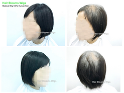 ooms Wigs, women's hairpiece for hair loss and hair thinning, Hong Kong Causeway Bay, 真髮, 醫療假髮, 女士髮片, 遮掩白髮, 脫髮, 頭髮稀疏, 香港, 銅鑼灣