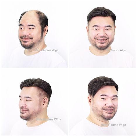 Hair Blooms Wigs | 男士脫髮 | 地中海 | 禿頭 | M 字額 | 醫療假髮 | 化療脫髮 | 鬼剃頭 | 醫療脫髮, 醫療假髮, 香港, 銅鑼灣, 假髮, medical wig, hairpiece, hair loss, wig shop, causeway bay, hong kong
