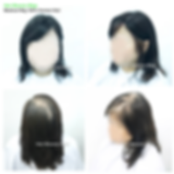Hair Blooms Wigs, women's hairpiece for hair loss and hair thinning, Hong Kong Causeway Bay, 真髮, 醫療假髮, 女士髮片, 遮掩白髮, 脫髮, 頭髮稀疏, 香港, 銅鑼灣