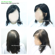Hair Blooms Wigs, women's hairpiece for hair loss and hair thinning, Hong Kong Causeway Bay, 真髮, 醫療假髮, 女士髮片, 遮掩白髮, 脫髮, 頭髮稀疏, 香港, 銅鑼灣