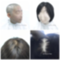 Hair Blooms Wigs 真髮醫療假髮及髮片, 香港銅鑼灣, wig shop in Causeway Bay, Hong Kong