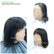 Hair Blooms Wigs, women's hairpiece for hair loss and hair thinning, Hong Kong Causeway Bay, 真髮假髮, 醫療假髮, 女士髮片, 遮掩白髮, 脫髮, 頭髮稀疏, 香港, 銅鑼灣