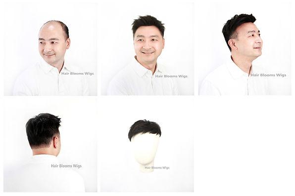 醫療假髮, 香港, 銅鑼灣, 假髮, 男士脫髮, 地中海, 禿頭, M 字額, 頭髮稀疏, 醫療假髮, 化療脫髮, 鬼剃頭, hairpiece medical wig shop in Causeway Bay, Hong Kong