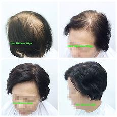 Hair Blooms Wigs 真髮醫療假髮及髮片