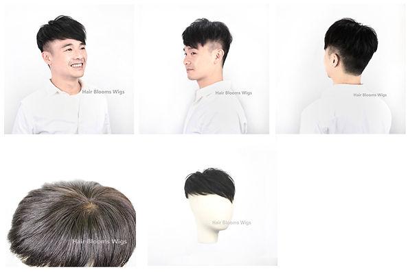 Hair Blooms Wigs | 男士脫髮 | 地中海 | 禿頭 | M字額 | 醫療假髮 | 化療脫髮 | 鬼剃頭 | 醫療脫髮 | 髮片, 醫療假髮, 香港, 銅鑼灣, 假髮, medical wig hairpiece, wig shop, causeay bay, hong kong