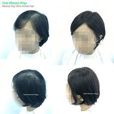 Hair-blooms-wigs-醫療假髮-whole-wig-eva_香港假髮