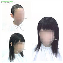 Hair-blooms-wigs-醫療假髮-whole-wig