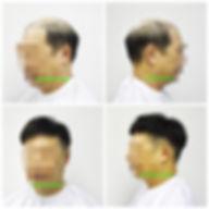 Hair Blooms Wigs | Medical wig | 醫療假髮 | 男士脫髮 | 頭髮稀疏 | 脫髮 | 地中海