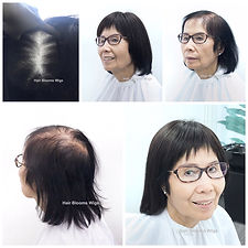 Hair Blooms Wigs 真髮醫療假髮及髮片, 香港銅鑼灣 medical wig shop in causeway bay, hong kong