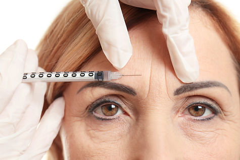 Hyaluronic acid injection for facial rej