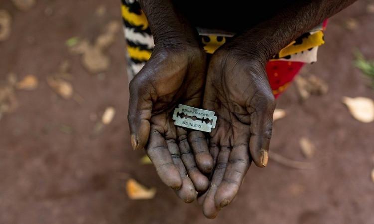 Questa pratica brutale, svolta per preservare la verginità della donna fino al matrimonio, è molto diffusa nell'Africa Subsahariana, specialmente in Somalia, dove la popolazione femminile colpita raggiunge quasi il 100%.