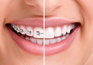 Ortodontia 02.jpg