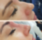 non surgical nose job in stafford