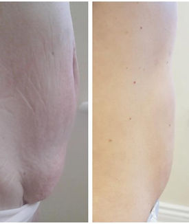 Radio Frequency Skin Tightenin Before and After
