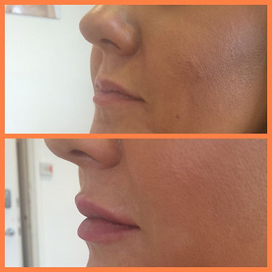 Before and After of Dermal Lip Fillers for a lovely clint