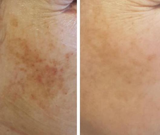 Results after 1 treatment of e-light laser for skin pigmentation.